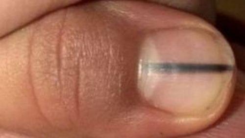 Nowotwór i czarne ślady na paznokciach – Co oznaczają?