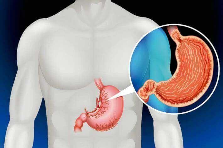 Żołądek jest jednymi z organów, których nie potrzebujesz