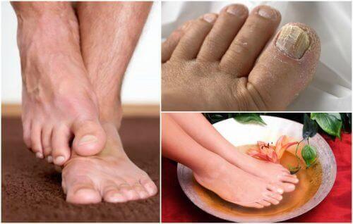 Symptomy grzybicy stóp – czy rozpoznajesz je u siebie?
