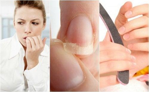 Łamliwość paznokci – poznaj 8 przyczyn
