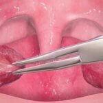 Migdałki są jednymi z organów, których nie potrzebujesz
