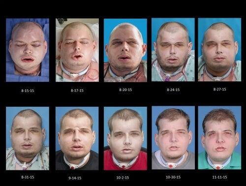 Przeszczep twarzy - etapy leczenia