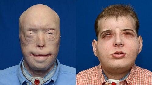 Najbardziej złożony przeszczep twarzy w historii