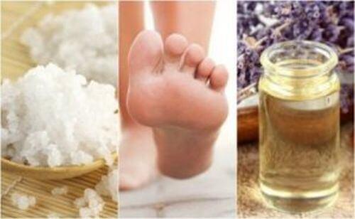 Zapalenie powięzi podeszwy – 5 domowych sposobów