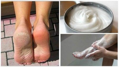 Zwalczanie grzybicy i usuwanie zrogowaceń na stopach
