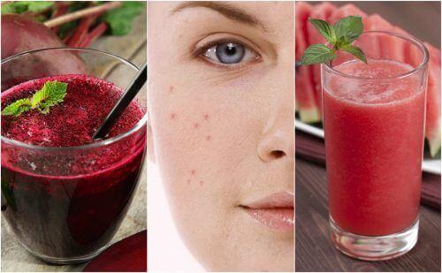 Zwalcz trądzik za pomocą 5 smoothie dodanych do diety