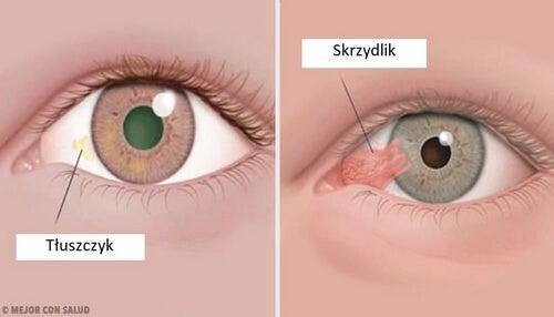 Guzy rogówki oka: tłuszczyk i skrzydlik