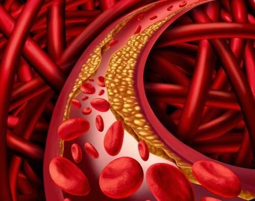 zły cholesterol w tętnicach