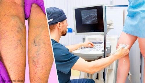 Leczenie żylaków – miejscowe, doustne i profilaktyka