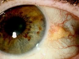 Oko tłuszczyk Guzy rogówki oka