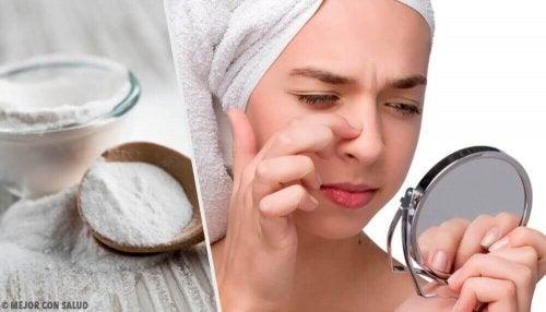 Zaskórniki – 4 skuteczne maseczki z sody oczyszczonej