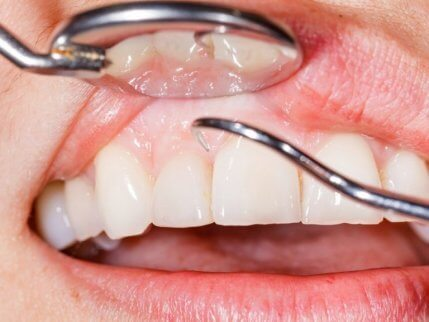 Przegląd zębów i dziąseł