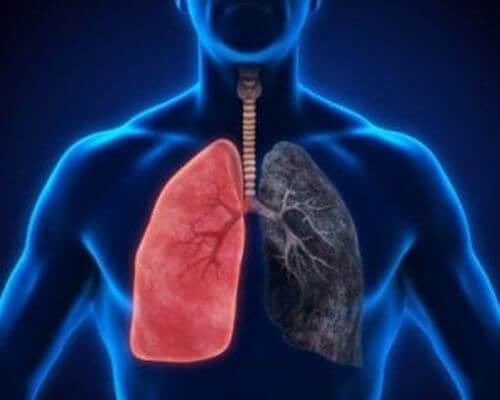 Zapalenie płuc – 8 objawów, których nie wolno ignorować