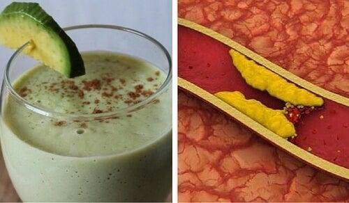 Awokado na obniżenie cholesterolu - wypróbuj te koktajle