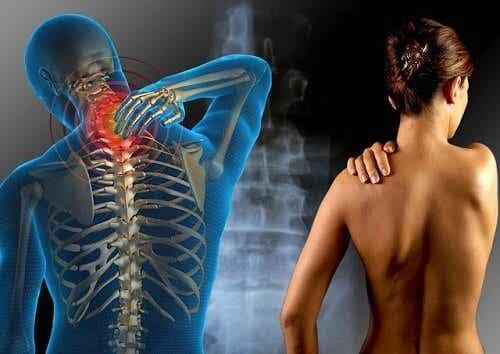 Fibromialgia - co musisz wiedzieć, aby ją pokonać