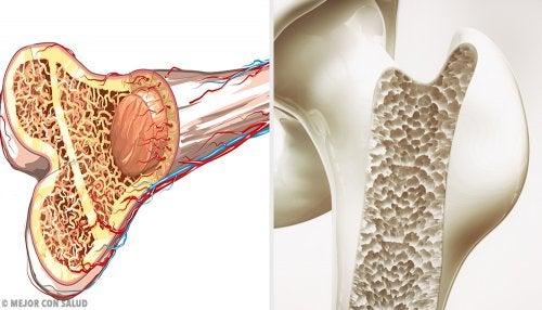Osteoporoza - przekrój kości