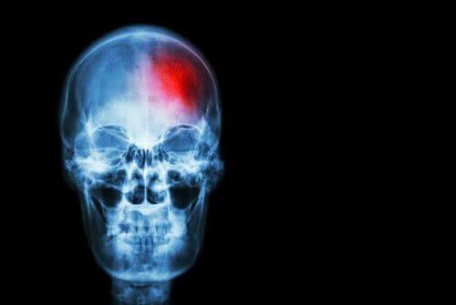 Udar mózgu a miniudar