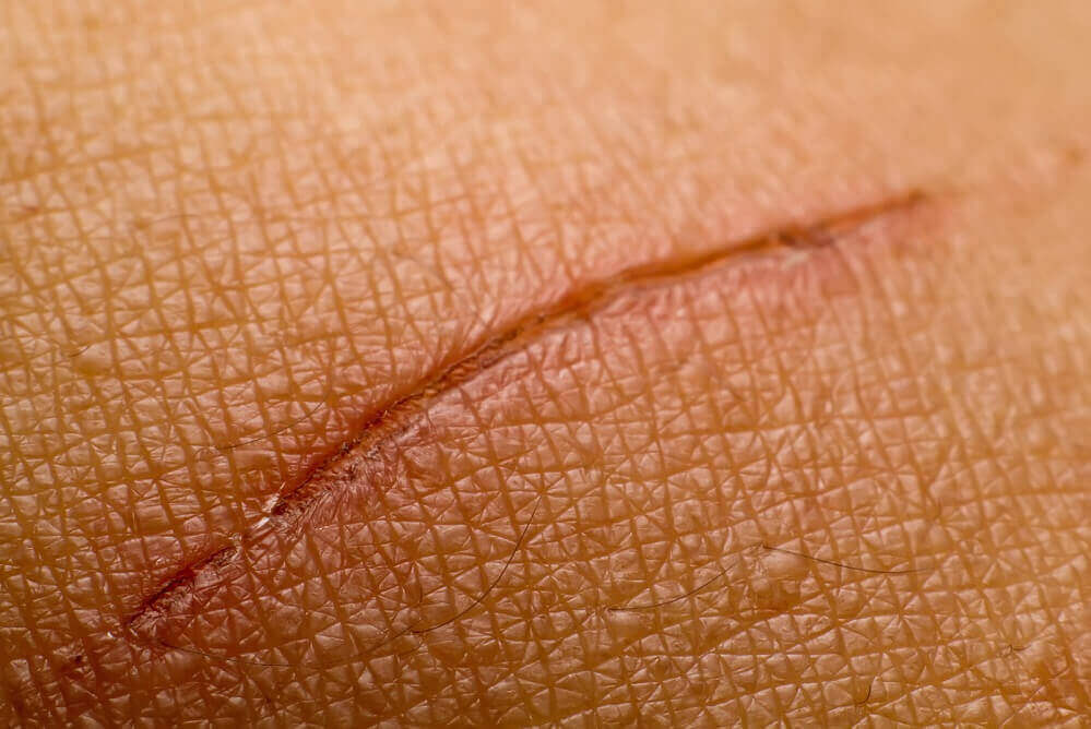 Skrzyp polny na zabliźnianie się rany