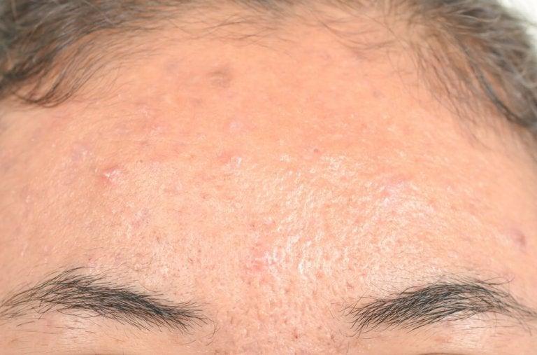 Łojotokowe zapalenie skóry – naturalne leczenie