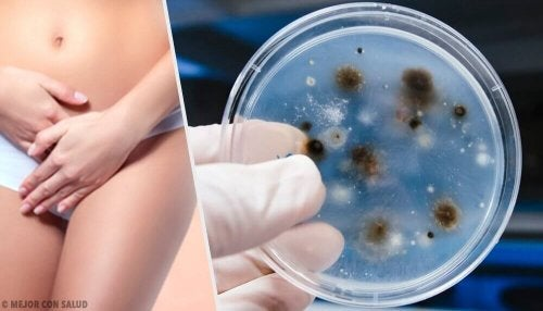 Infekcje intymne – poznaj ich typy oraz przyczyny
