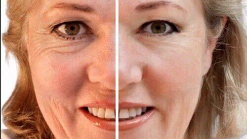 Kobieta zmarszczki na twarzy suszone śliwki