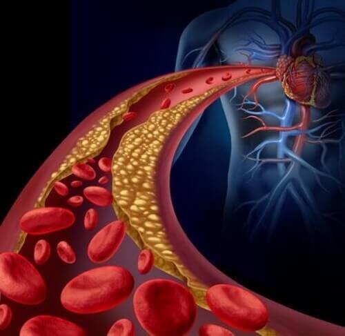 Zatkane tętnice – co jest przyczyną?
