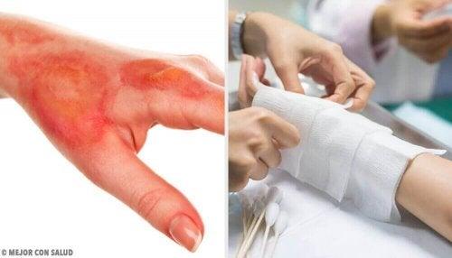 Jak leczyć oparzenia domowymi sposobami