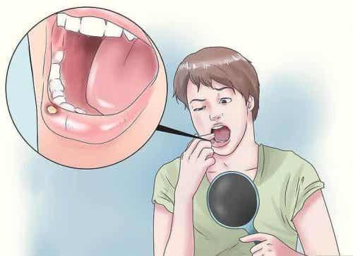 Owrzodzenie jamy ustnej – 8 naturalnych rozwiązań