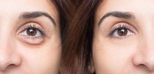 Kobieta twarz oczy wyglądać młodziej
