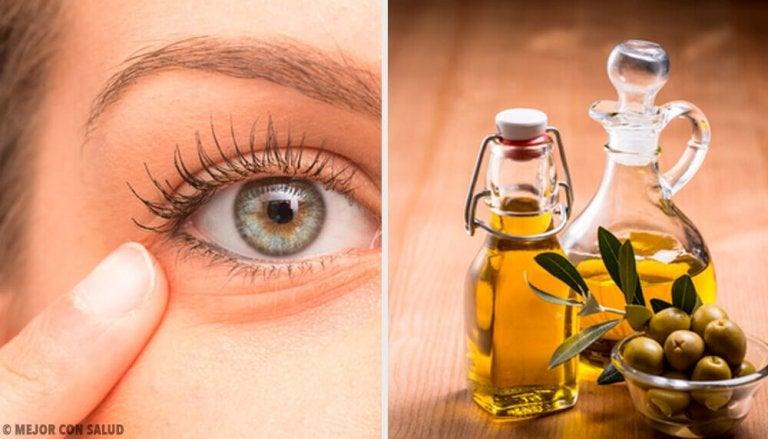 Zapalenie oczu - 6 naturalnych remediów