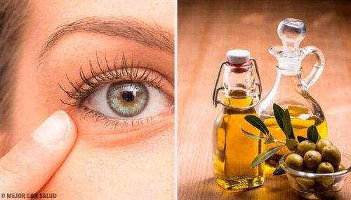 Zapalenie oczu – 6 naturalnych remediów