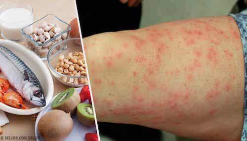 Produkty wywołujące alergie pokarmowe i ich substytuty