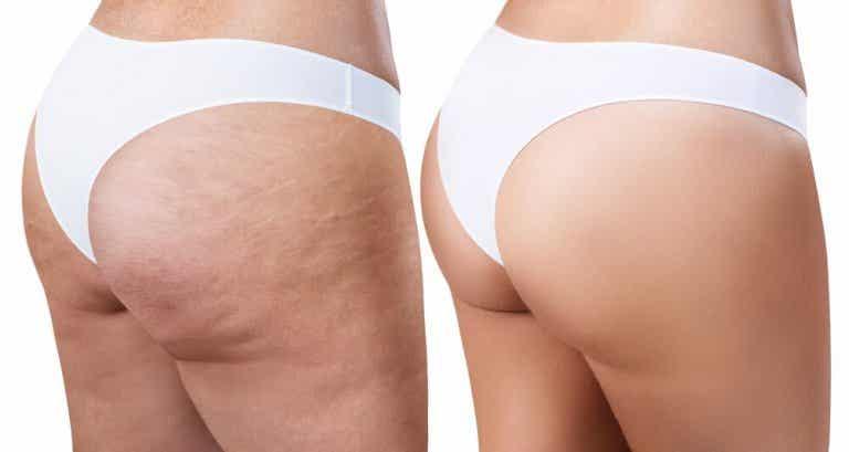 Cellulit – domowe sposoby na skórkę pomarańczową