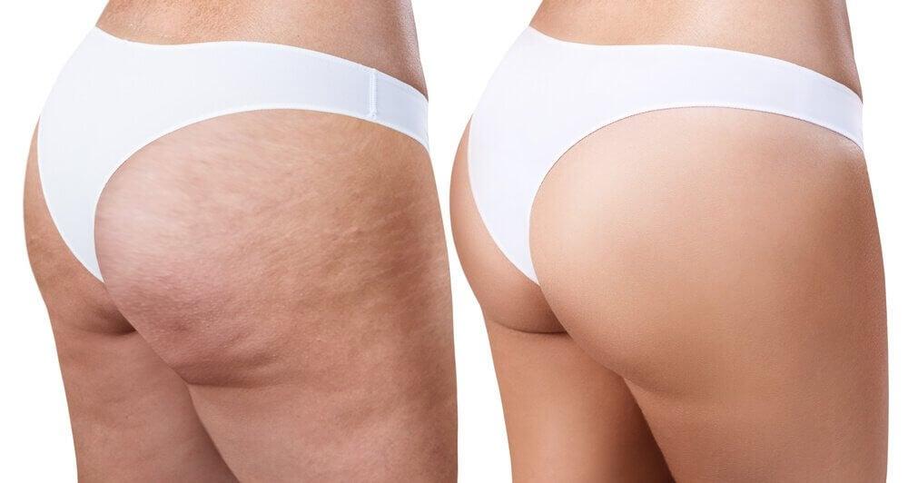 Cellulit na udach rozmaryn ma zastosowanie antycelliitowe