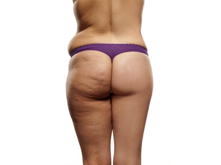 Dieta antycellulitowa - najważniejsze wskazówki