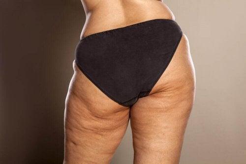 Cellulit u kobiety