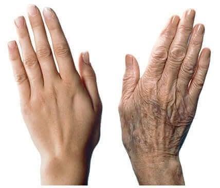 Skóra dłoni – jak chronić ją przed starzeniem?
