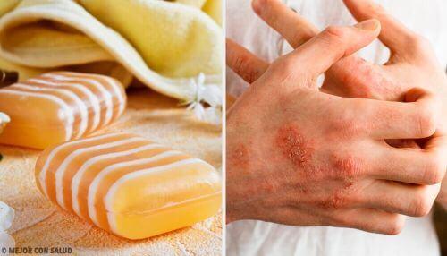 Egzema – przepis na naturalne mydło lecznicze
