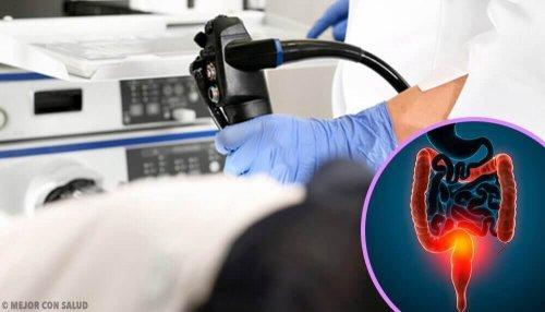 Rak jelita – dowiedz się jakie są objawy i leczenie