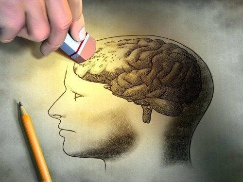 narysowana głowa z mózgiem zaburzenia pamięci