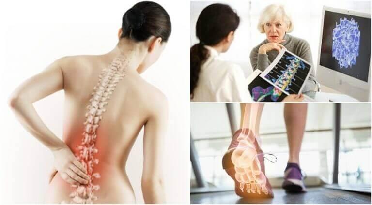 osteoporoza i ból pleców