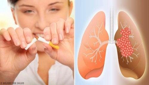 Rak płuc – Główne przyczyny i diagnostyka