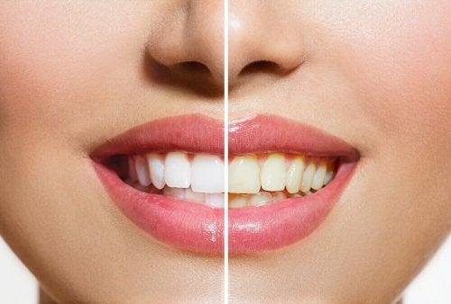 Biały uśmiech – domowe metody wybielania zębów