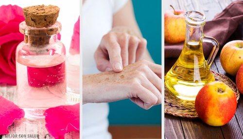 Jak naturalnie rozjaśnić skórę dłoni?