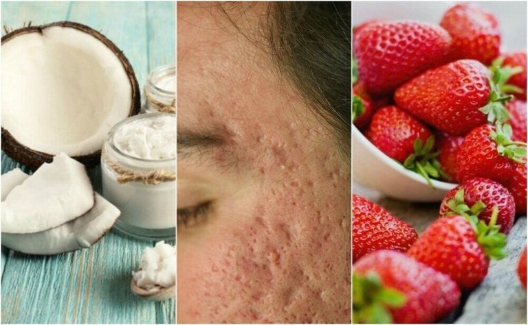 Blizny po trądziku - 5 domowych remediów