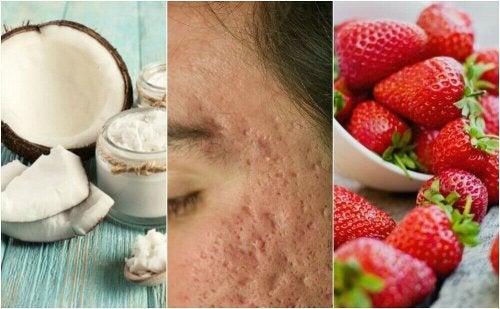 Blizny po trądziku – 5 domowych remediów