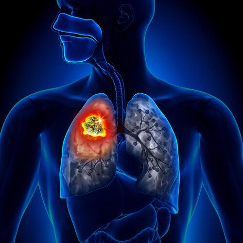 Typy raka płuc