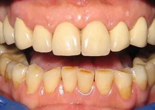zaniedbane zęby
