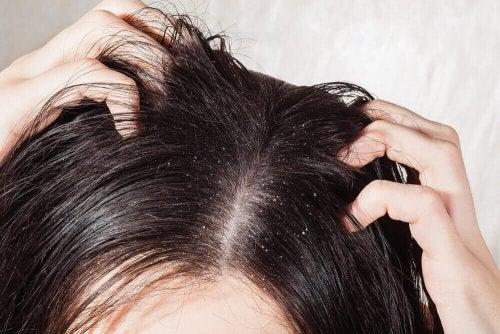 Grzybica skóry głowy – 6 domowych remediów
