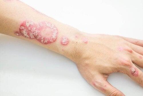 Łuszczyca skóry – zwalcz ją domowymi sposobami